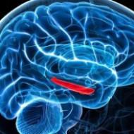Найдены гены, виновные в предрасположенности к инсульту