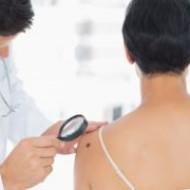Российские школьники разработали программу, определяющую рак кожи