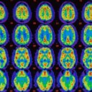 Витамины группы В надежно защищают мозг и серое вещество