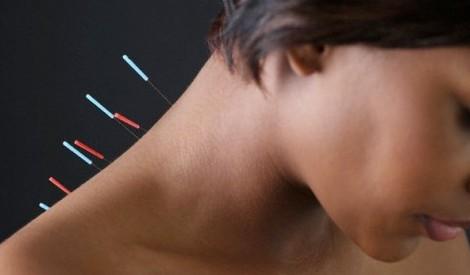 Ослабить симптомы хронической обструктивной болезни легких помогает иглоукалывание