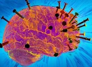 менингит - воспаление мозга