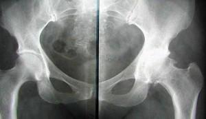 артрит тазобедреннго сустава рентген