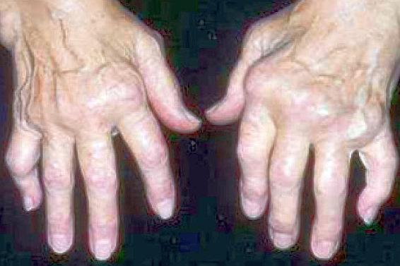Артрит — симптомы, виды, лечение