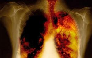 рентгеновский снимок рака лёгких