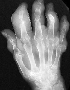 рентгенограмма при подагре