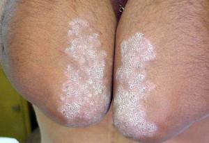 Как проводить лечение псориаза в домашних условиях