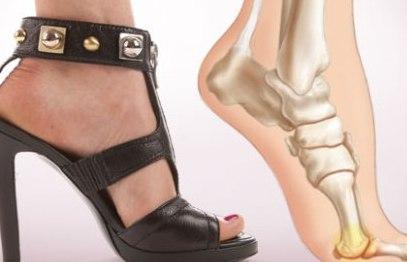 Ношение обуви на высоком каблуке является неоправданной жертвой моде