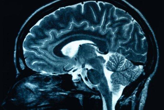 В европейские аптеки поступил пластырь против эпилепсии