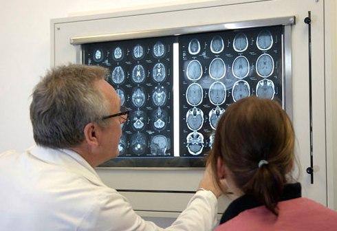 Появились новые данные о причинах эпилепсии