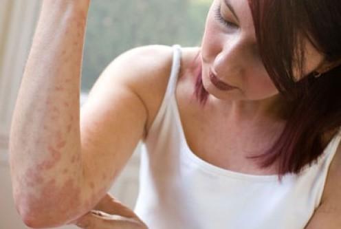 Псориаз может указывать на серьезные заболевания внутренних органов
