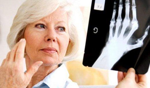 Между ревматоидным артритом и бактериями в кишечнике есть связь
