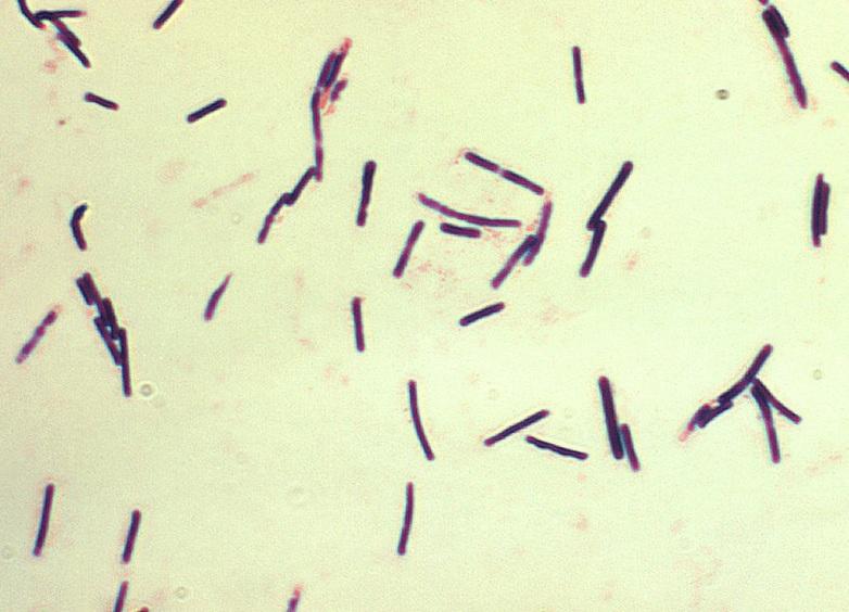Развитие рассеянного склероза связывают с пищевым токсином