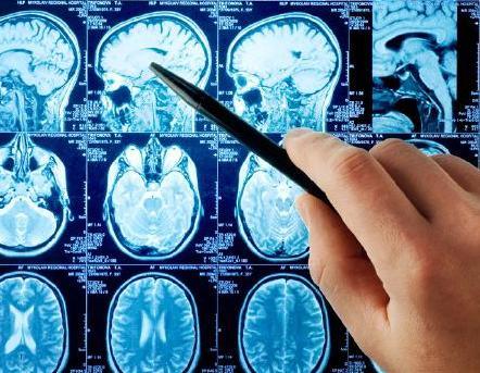 Трехмерная модель головного мозга выведет медицину на новый уровень