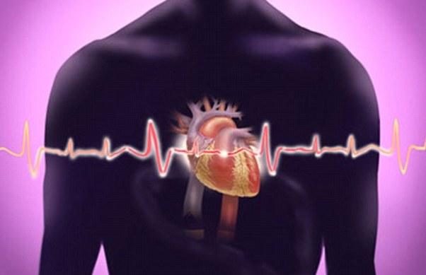 Остановка и запуск сердца при аритмии