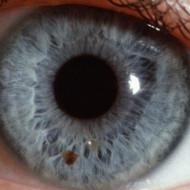 Британские медики совершили настоящий прорыв в офтальмологии