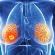 Установка грудного имплантата все чаще приводит к раку