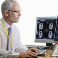 Обнаружилась связь между фибрилляцией предсердий и деменцией