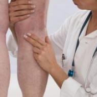 Тромбофлебит — симптомы, диагностика, лечение, профилактика