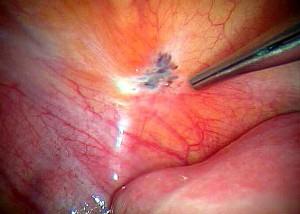 эндометриоз симптомы