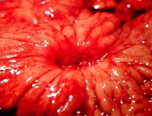 фото язвы желудка