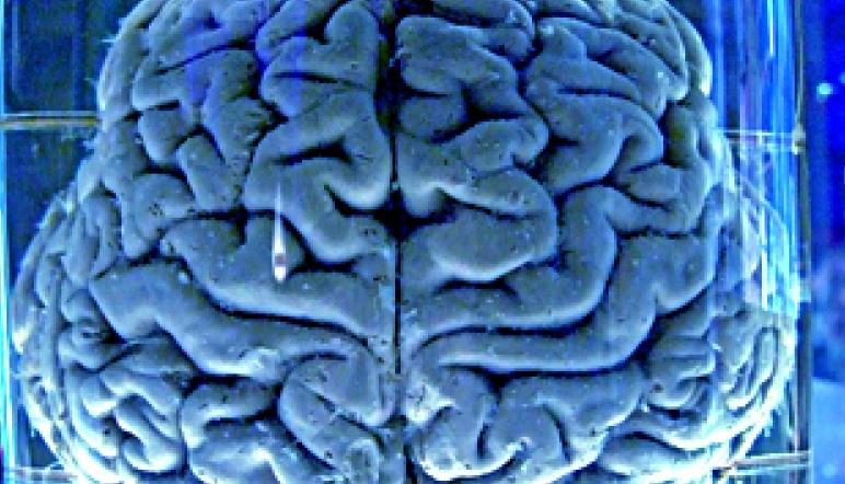 Для страдающих эпилепсией разработали мозговые имплантаты, подающие сигнал о приближающемся приступе