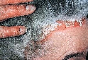 псориаз головы