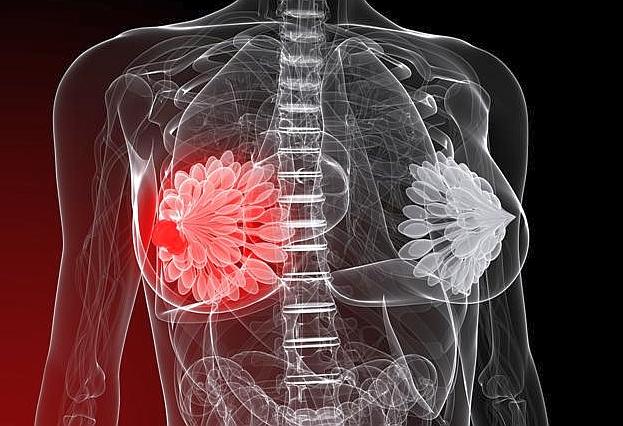 Мастопатия — причины, симптомы, лечение