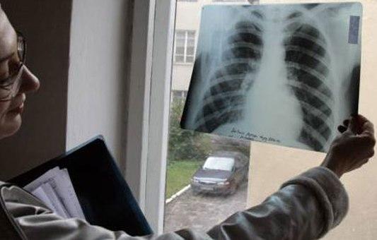 Рак легких перестал быть болезнью заядлых курильщиков