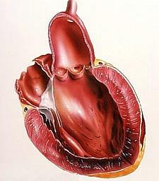 инфаркт симптомы