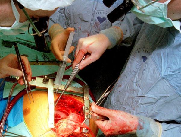 Индийские медики создали имплантат, улучшающий состояние сосудов