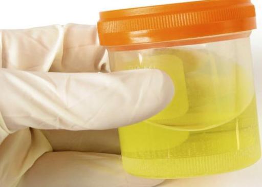 Анализ количества белка в моче укажет на агрессивность рака