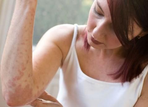 Упрощена диагностика кожных заболеваний