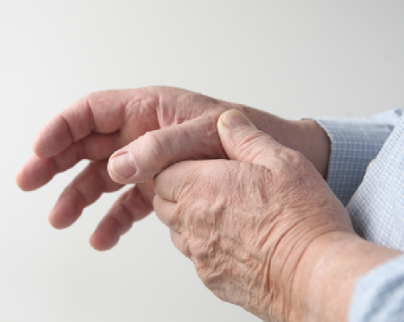 Препарат, предназначенный для лечения артрита, тормозит болезнь Альцгеймера