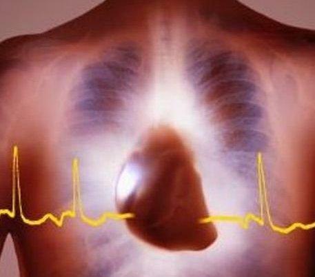 Разработчики кардиостимуляторов воспользовались идеей часовых дел мастеров